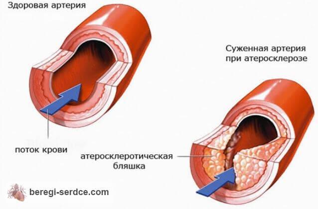 Можно употреблять спиртное после инфаркта миокарда