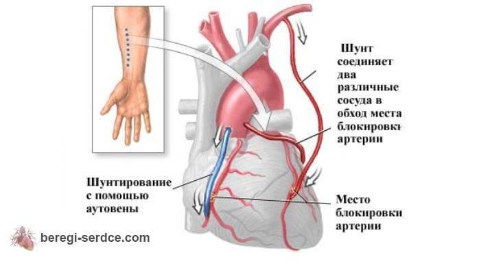 Коронарное шунтирование через руку