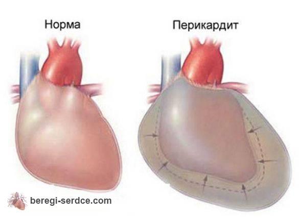 Жгучая боль в сердце