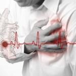 Инфаркт задней стенки миокарда