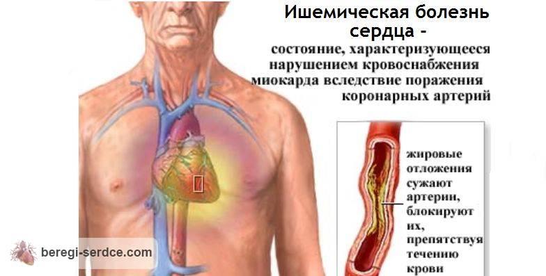 Признаки и методы лечения ишемической болезни сердца у женщин
