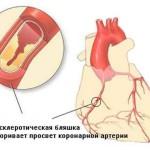Заболевание ишемическая болезнь сердца