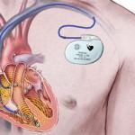 Установка кардиостимулятора