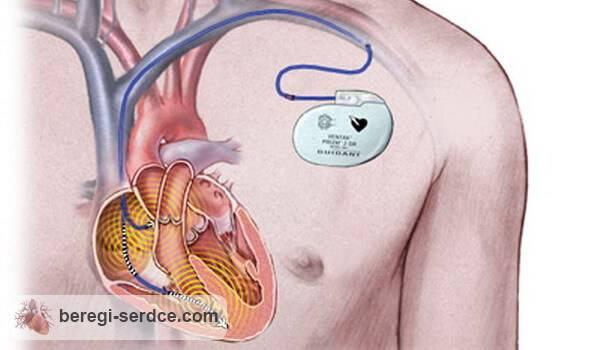 установка кардиостимулятора: показания и противопоказания проведение операции и возможные осложнения стоимость и прочее