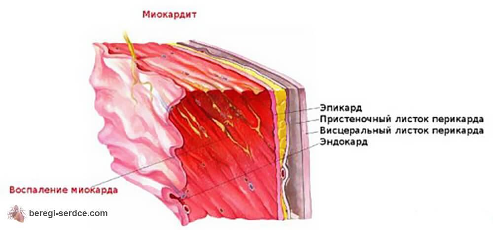 Классификация миокардитов по этиологическим признакам, по степени ...