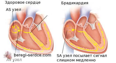 Синусовая брадикардия сердца что это такое