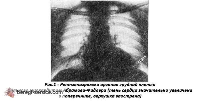 Миокардит Абрамова-Фидлера (идиопатический): причины, симптомы ...