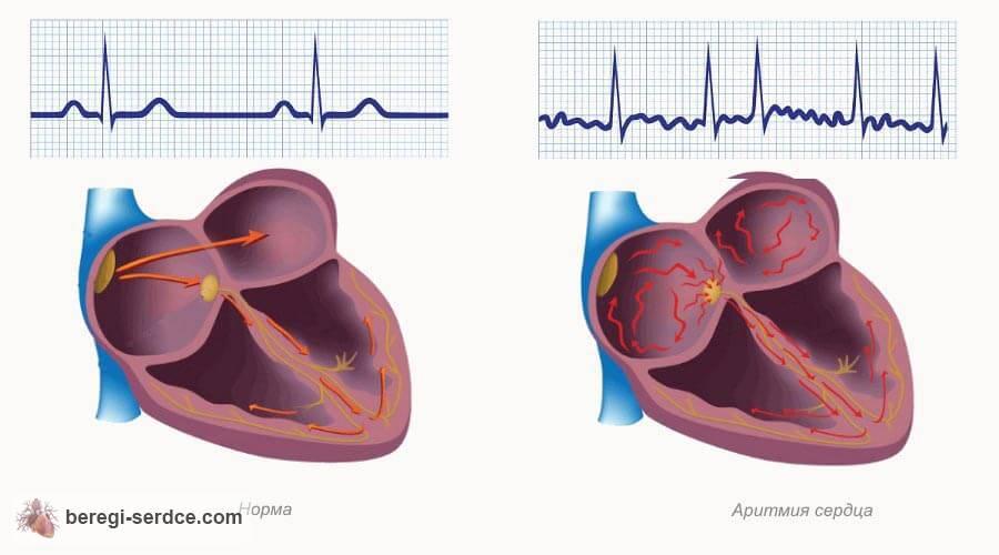 Аритмия сердца: причины, симптомы, лечение