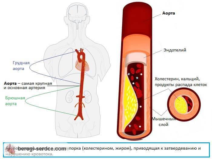 Атеросклеротическая болезнь сердца (атеросклероз аорты): причины ...