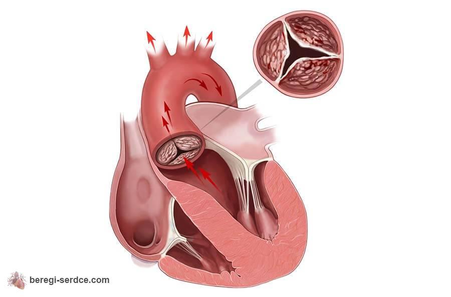 Что делать при атеросклерозе сосудов сердца
