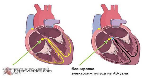 Чем опасна аритмия сердца? Опасности при разных видах аритмий