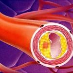 Атеросклеротическая болезнь сердца (атеросклероз аорты)