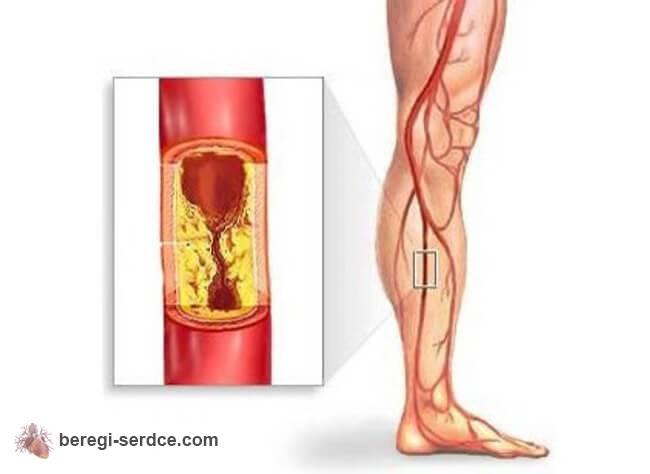Современные препараты понижающие холестерин