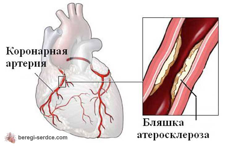 Анализ крови на холестерин хеликс