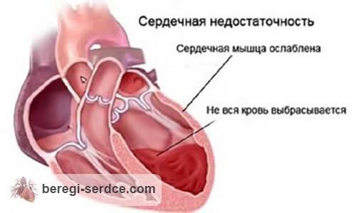 Синусовая аритмия сердца – что это? Причины, симптомы, диагностика ...