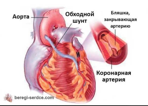 препараты статины снижение уровня холестерина