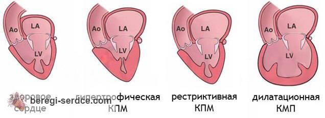 Классификация кардиомиопатии: первичные и вторичные виды