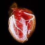Ангиография сосудов сердца