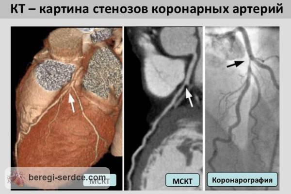 Компьютерная томография коронарных артерий сердца