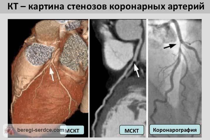 Что такое ангиография сосудов сердца народная медицина тайланда