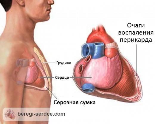 Перикардит: причины, симптомы, классификация, диагностика, лечение ...