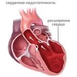 Что значит сердечная недостаточность