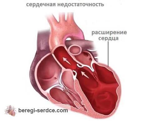 Что значит сердечная недостаточность её причины и признаки классификация диагностика лечение