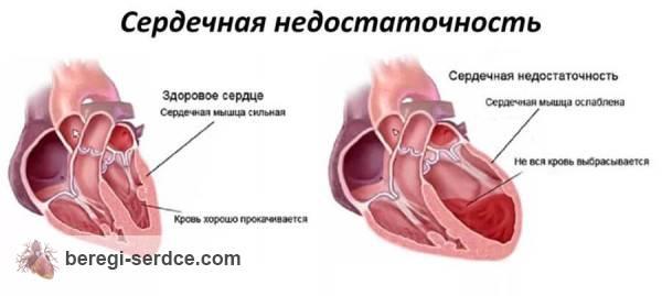 Сердечная недостаточность: причины, классификация, признаки, лечение