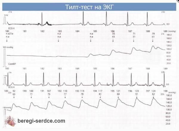 После выраженной брадикардии и артериальной гипотензии, развившихся во время тилт-теста, артериальное давление и ритм сердца быстро восстанавливаются при возвращении пациента в горизонтальное положение
