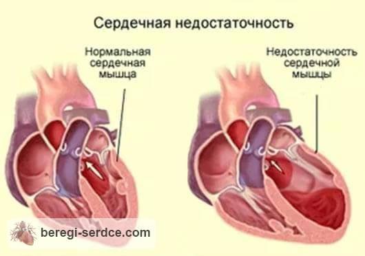Что значит хроническая сердечная недостаточность? Симптомы и ...