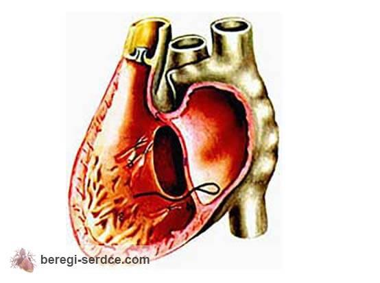 острая сердечная недостаточность причины виды симптомы диагностика и лечение препараты рекомендации