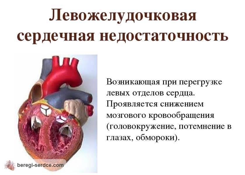 Острая сердечная недостаточность: причины, симптомы перед смертью ...