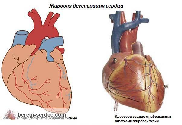 Ожирение сердца: симптомы, причины, лечение и влияние ожирения на ...