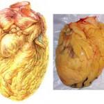 Сердце человека с ожирением