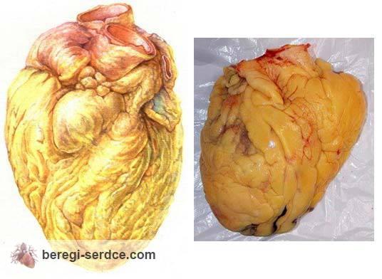 Ожирение сердца: его симптомы причины лечение и профилактика как ожирение влияет на сердце