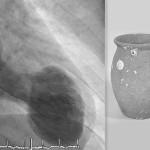 Кардиомиопатия такоцубо