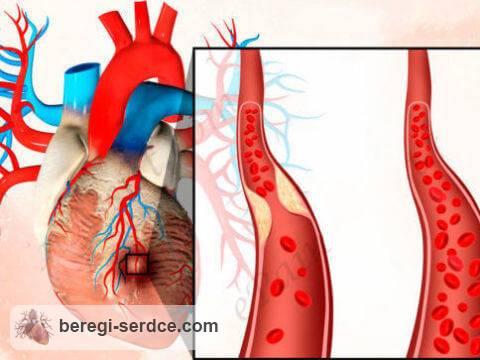 Инфаркт миокарда, перенесенный на ногах
