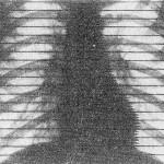 Рентгенокимография сердца